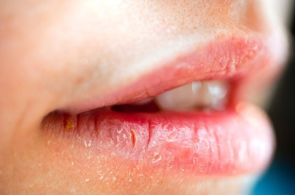 اگر سردی میں ہونٹ پھٹتے ہوں، تو یہ ٹوٹکا آزمائیں