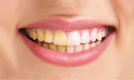 دانتوں کی پیلاہٹ دور کرنے کا نسخہ