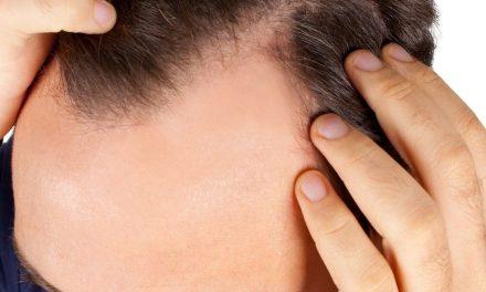 بالوں کے جھڑنے کا علاج