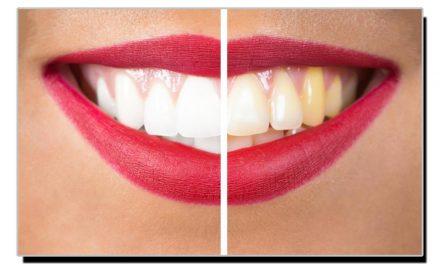 دانتوں کی پیلاہٹ دور کرنے کا آسان گھریلو ٹوٹکا