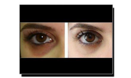 آنکھوں کے گرد سیاہ حلقے دور کرنے کا ٹوٹکا