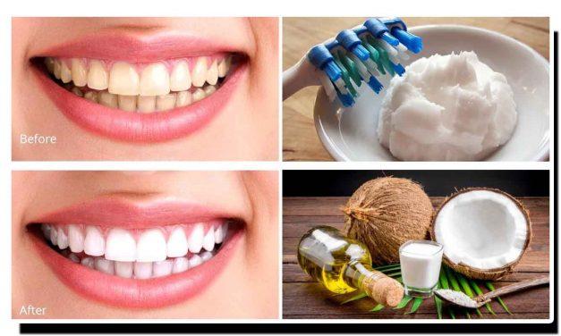 ناریل کا تیل جگمگاتے دانتوں کا ٹوٹکا