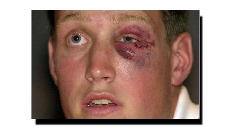 زخم کا نیل مٹانے کا ٹوٹکا