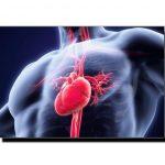 دل کی دھڑکن متاثر ہونا آئرن کی کمی کا باعث ہوسکتا ہے