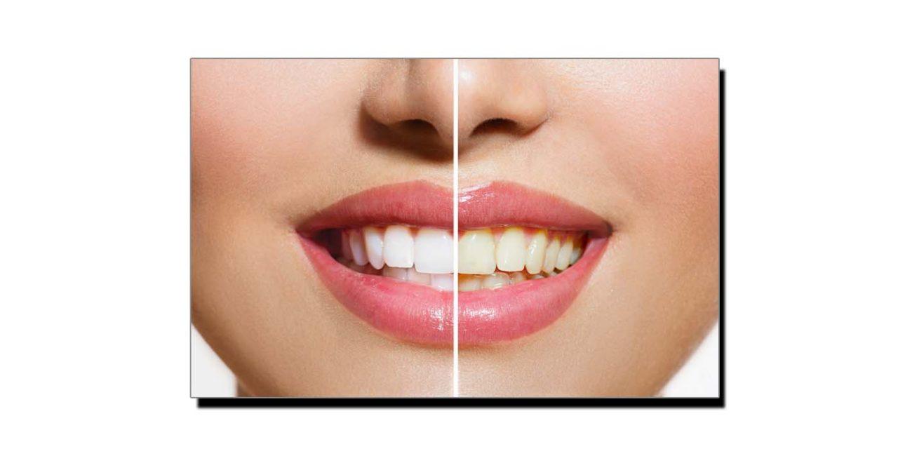 مانتے ہیں پیلے دانت مضبوط ہوتے ہیں؟